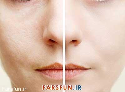 کاهش منافذ پوست صورت